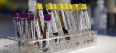 Buoni risultati ottenuti con le Car-T. Mieloma multiplo e linfoma mantellare recidivanti e refrattari possono beneficiare del trattamento personalizzato. I risultati presentati ad ASHMieloma multiplo e linfoma mantellare: i benefici delle Car-T